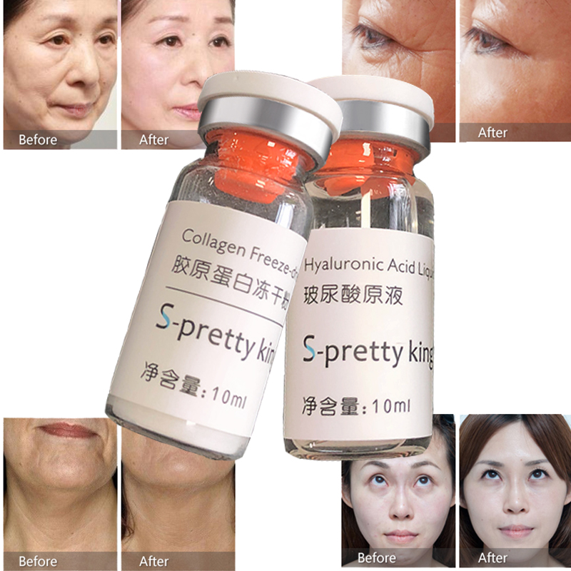 10ml Crosslinking Filler Hyaluronic Acid 2pc For Skin Whitening Anti Wrinkle Face Lifting With Hyaluronic Atomizer Injection Pen
