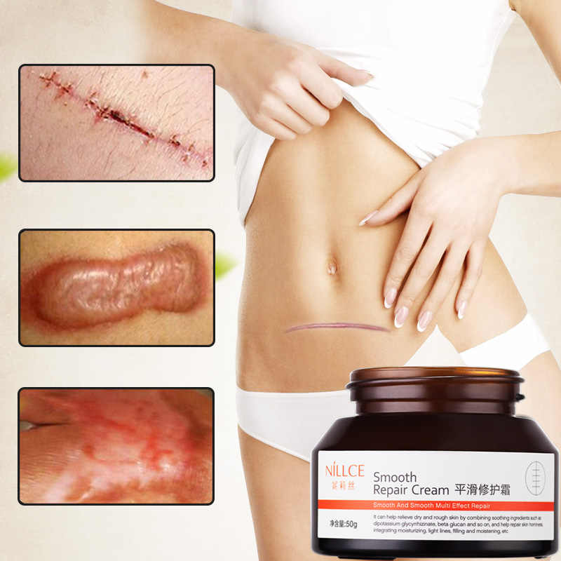 Nillce Scar Removal Cream Repair Acne Scar Cream Body Care Cream