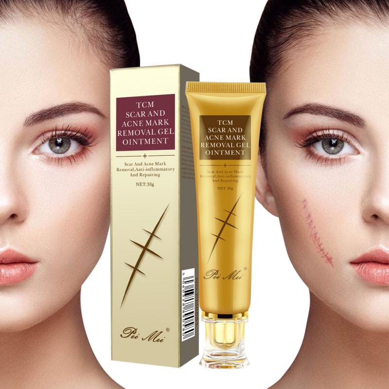 TCM Scar Cream Scald Surgicals Scar Stretch Mark Repair Cream Treatments Whitening Cream Skin Repair Face Cream 30ml