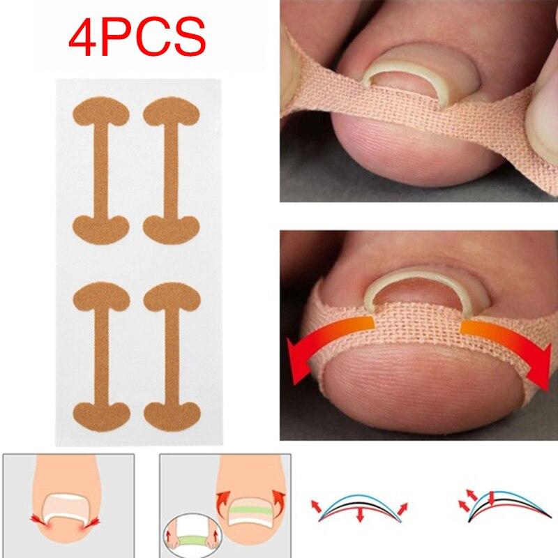 4 шт. наклейки для ногтей Педикюр для ногтей изогнутые полезные кусачки для удаления вросшего ноготя Корректор ног наклейки выпрямление ног...