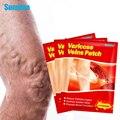 Sumifun 6 шт./пакет китайский варикозное расширение вен штукатурка васкулита флебит паук нога медицинский пластырь ангиит удаления патч