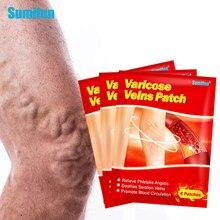 Sumifun 6 teile/beutel Chinesischen Krampfadern Gips Vaskulitis Venenentzündung Spinne Bein Medizinische Patch Angiitis Entfernung Patch