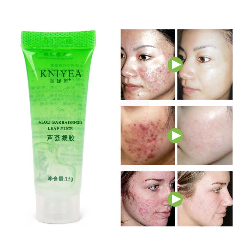 1pcs Natural Aloe Vera Gel Face Moisturizing Smoothing Cream Acne Remover Sunscreen Acne Treatment Facial Skin Care Base Primer