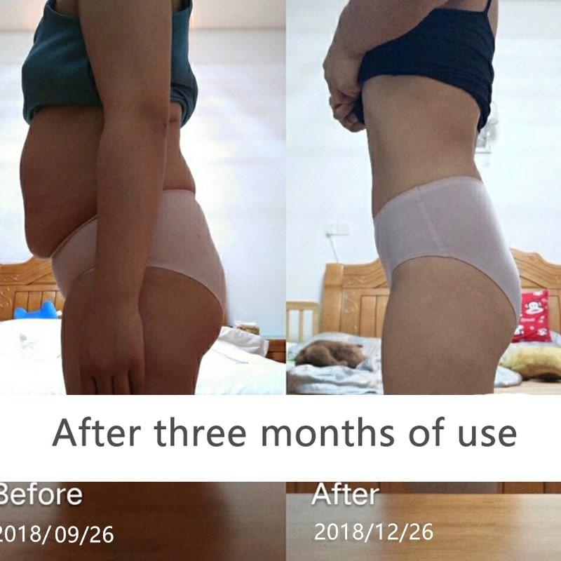 Os-produtos-unisex-da-perda-de-peso-do-emagrecimento-queimam-rapidamente-a-gordura-sem-dieta-anti