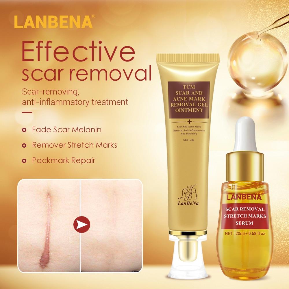 LANBENA 2PCS Scar Removal Essence Stretch Marks Remover Cream Acne Treatment Effective Repair Skin Care Fade Fine Line Whitening