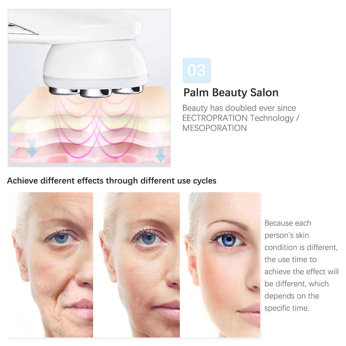 Rejuvenescimento da pele, tratamento de beleza de mesoterapia facial com led, fóton, rejuvenescimento da pele, rejuvenescimento da rádio frequência rf, para apertar o rosto