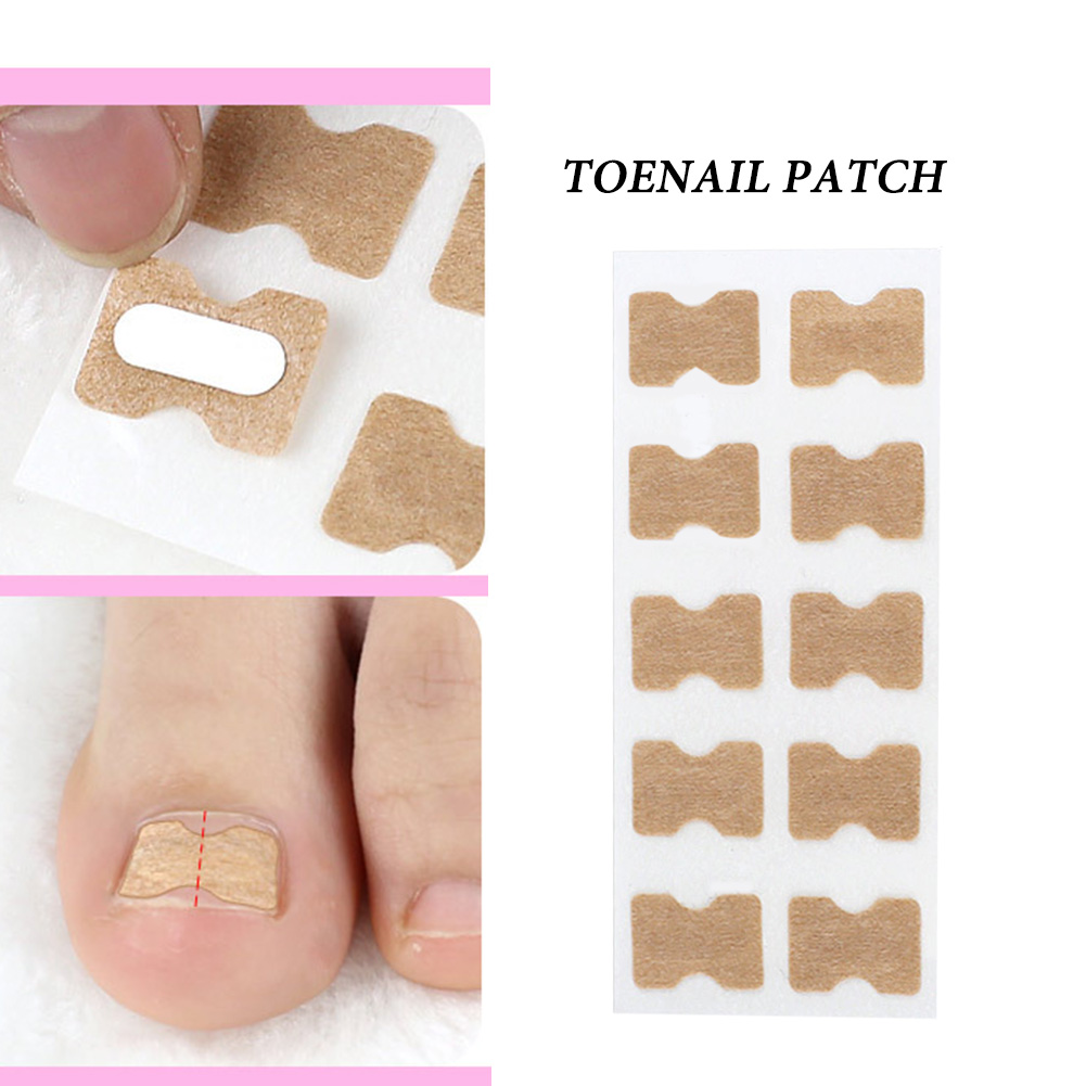 Ingrown Toenail Corrector Sticker Paronychia Treatment Fixer Recover Corrector Pedicure Foot Toe Nail Care Tool Glue Free