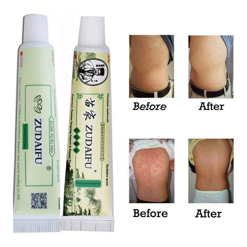 Wholesale 10 Pcs Zudaifu Skin Psoriasis Ointment Dermatitis Eczema Cream Body Eczema Psoriasis Treatment Ointment Zudaifu Cream