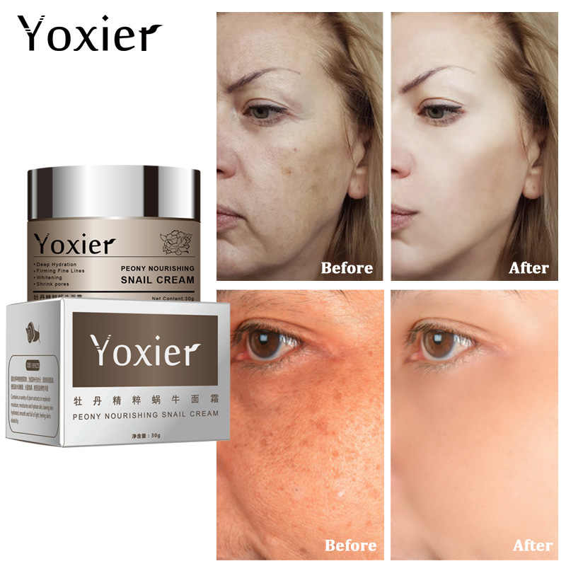Yoxier Snail Eye Cream Krim Wajah Anti Aging Menghilangkan Kantong Mata Lifting Firming Garis Halus Kulit Wajah Perawatan Membeli 2 Get 1 Free Gift