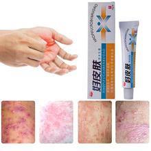 1 шт. крем для лечения псориаза кожи крем для ухода за кожей
