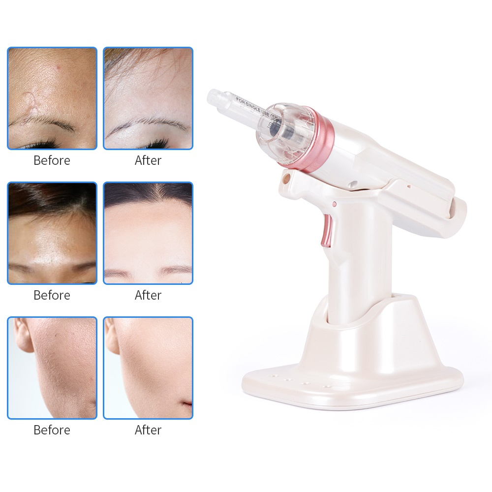 Image 3 - Hydrolifting Gun Korea Mesotherapy EZ Negative Pressure Meso gun Mesotherapy Hydrolifting Water Injector Microcrystal Injection-in Ion Device from Beauty & Health