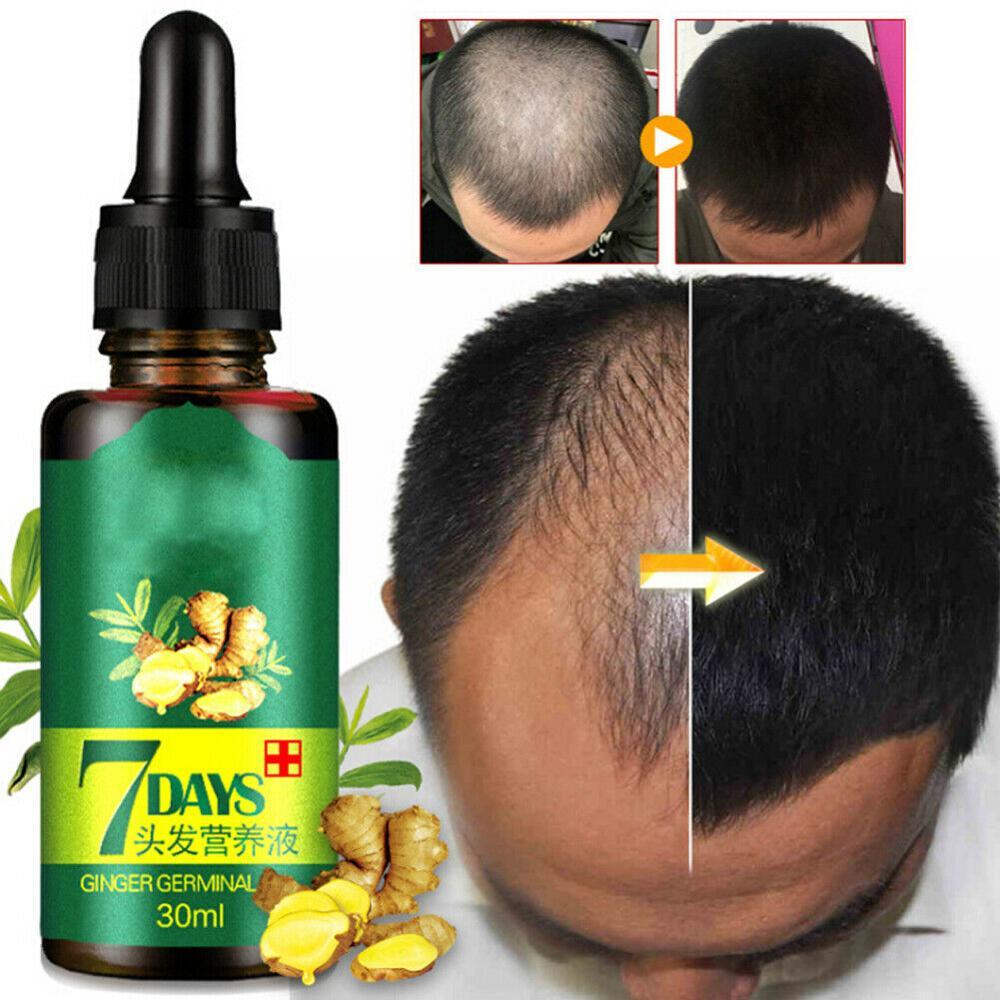 Ginger Hair Growth Essence 7 Days Germinal Hair Growth Serum Essence Oil Hair Loss Treatement Growth Hair For Men Women