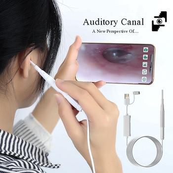 Herramienta Visual para quitar la cera de los oídos, limpiador de oídos...