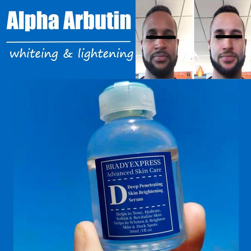 Оригинальный Альфа арбутин супер отбеливающий Темный Осветляющий сыворотка Kojic кислота сыворотка отбеливающий крем уход за лицом
