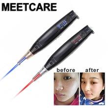 Picosecond Lazer Kalem Mavi Kırmızı Işık Tedavisi Pigment Dövme Skar Köstebek Çil Kaldırma Karanlık Nokta Makinesi Lazer Picosecond Pen