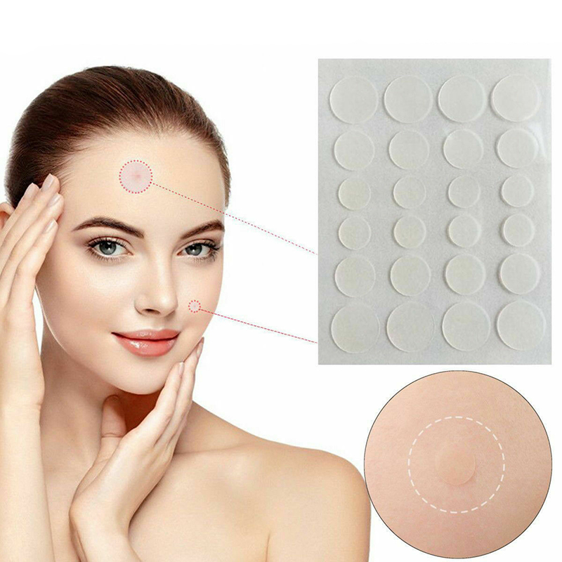 36 Pcs Acne Patch Set Remover Treatments Blemish Acne Scar Transparent Waterproof Acne Stickers Pimple Treatment Tools