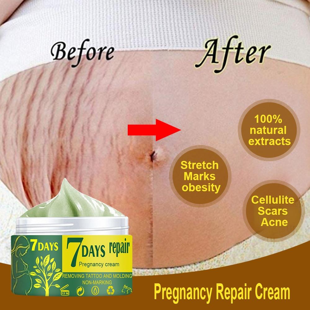 Segni di gravidanza che riparano la crema per il corpo smagliature crema per la rimozione della cicatrice dell'irritazione idratante rassodante lozione antirughe per la cura della pelle 1
