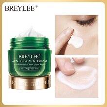 BREYLEE крем для лечения акне, крем против акне, крем для лица, Удаление прыщей и пятен, контроль жирности, сужение пор, увлажняющая сыворотка для ухода за кожей, 20 г