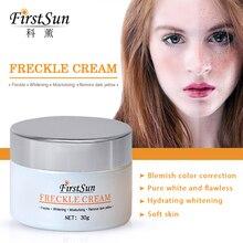 Anti Melanin Cream 30g Remove Melasma Dark Spot Pigmentation Repair Facial Skin