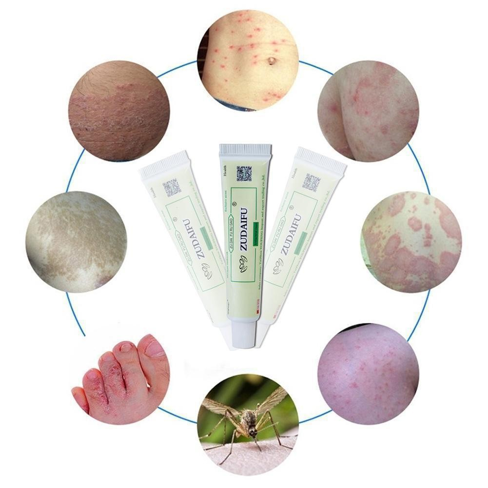Купить с кэшбэком 5/15g Zudaifu Cream Psoriasis Treatment Ointment Dermatitis Eczematoid Eczema Ointment Skin Repair Plaster Psoriasis Cream