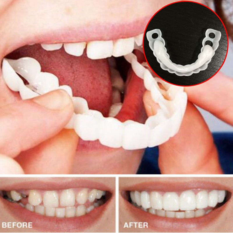 1 Set Upper & Lower Teeth Whitening Tooth Braces Simulation Brace Whitening Sleeve Smile Comfort Fit Denture Sleeve Oral Care