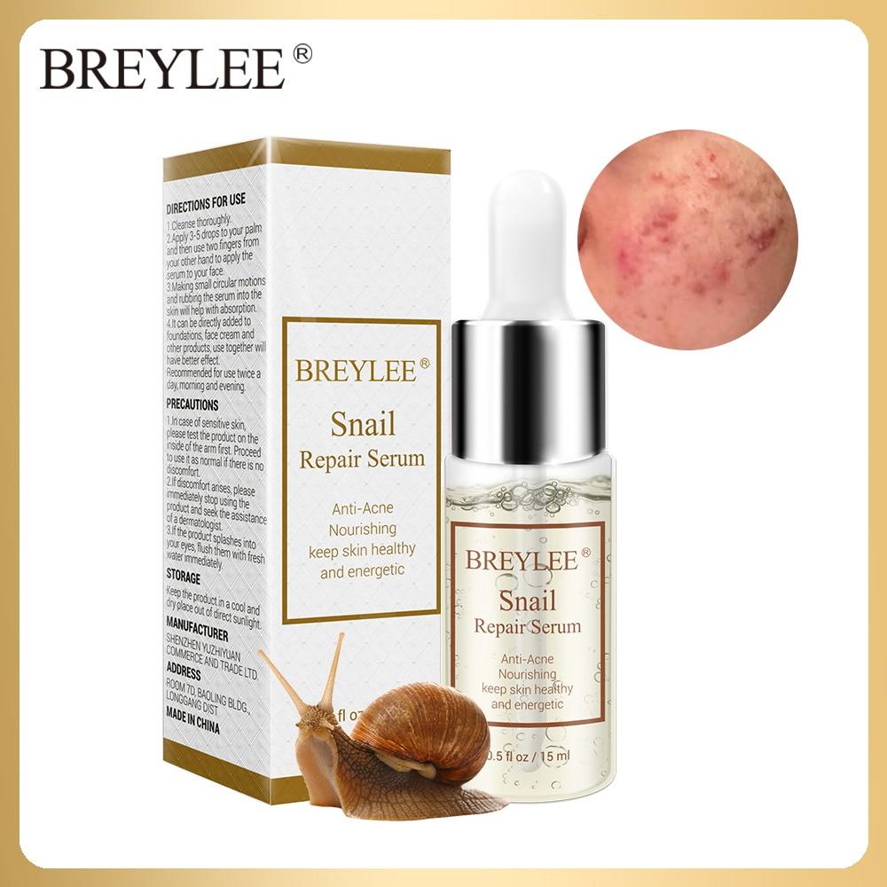 BREYLEE Snail Repairing Serum Anti-Acne Rejuvenation Essence Scars Acne Treatment Liquid Face Skin Care Nourishing Moisturizing