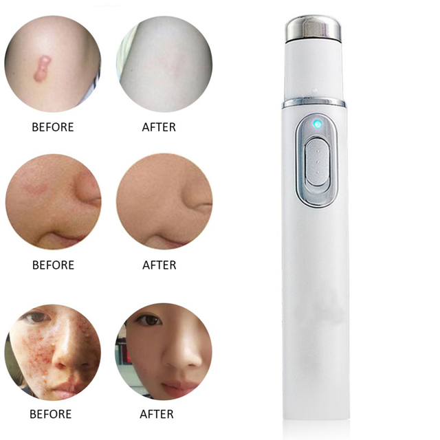 Acne Laser Pen Portable Wrinkle Removal Machine Durable Soft Scar Remover Blue Light Therapy Pen Massage spider vein Eraser 3