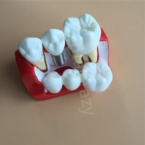 Image 3 - Diş öğretme İmplant analizi taç köprü çıkarılabilir modeli diş gösteri diş modeli
