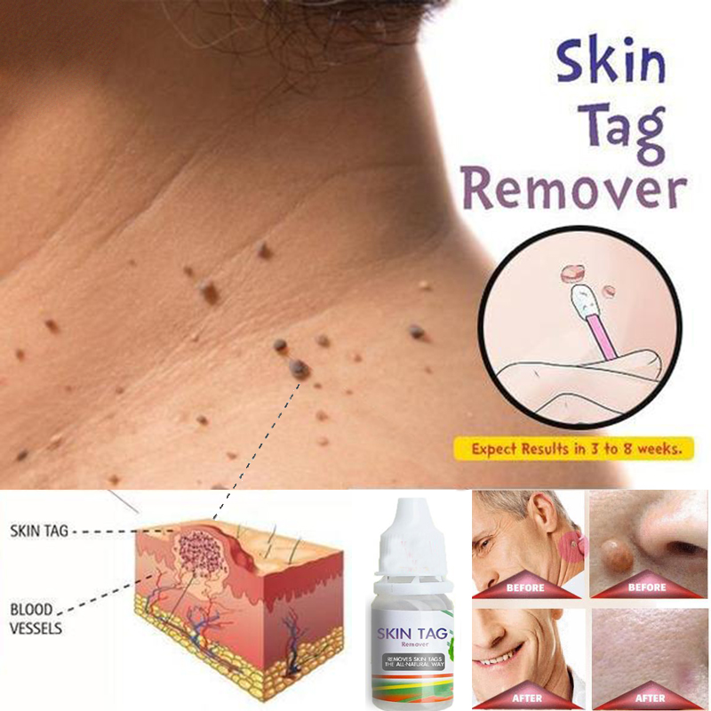 Skin Tag Remover 12 Hours Tu Kill Medical Tu Kill Remover Skin Tag Mole Genital Wart Remover Foot Corn Blackhead Remover 10ml