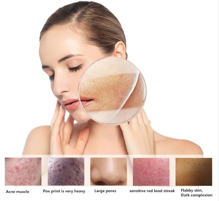 Oligopeptide-1 comprimés lyophilisés, pour améliorer la matité, éclaircir le teint de la peau, rétrécir les pores et réparer les peaux endommagées et sensibles