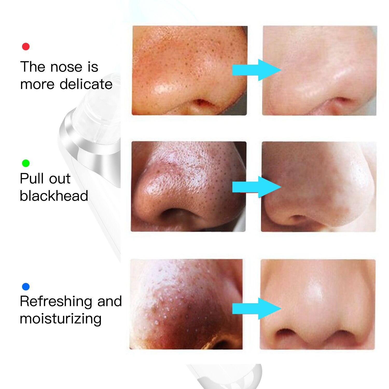 Blackhead Remover Pore Vacuum Suction Acne Peeling Pore Face Cleanser Facial Skin Diamond Beauty Care Tool Skin Care in Face Skin Care Tools from Beauty Health