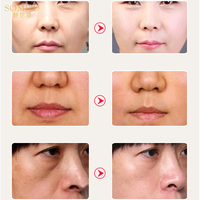 SOMILD Luxury Korean Cosmetics Snowy White Face Serum Whitening Women Firming Emulsion Plant Essence Skin Care Wrinkle Cream 4