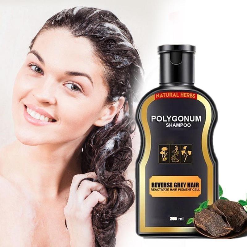 Sevich 200ml Hair Loss Treatment Shampoo Hair Care Shampoo Bar Ginger Hair Growth Cinnamon Anti-hair Loss Shampoo