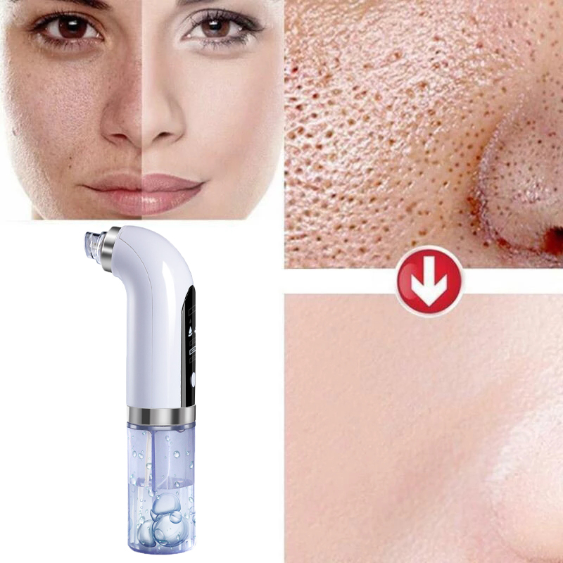 Blackhead Remover Nose Face Deep Cleaner Pore Acne Pimple Removal Vacuum Suction Facial Beauty Clean Skin Tool Dropshipping