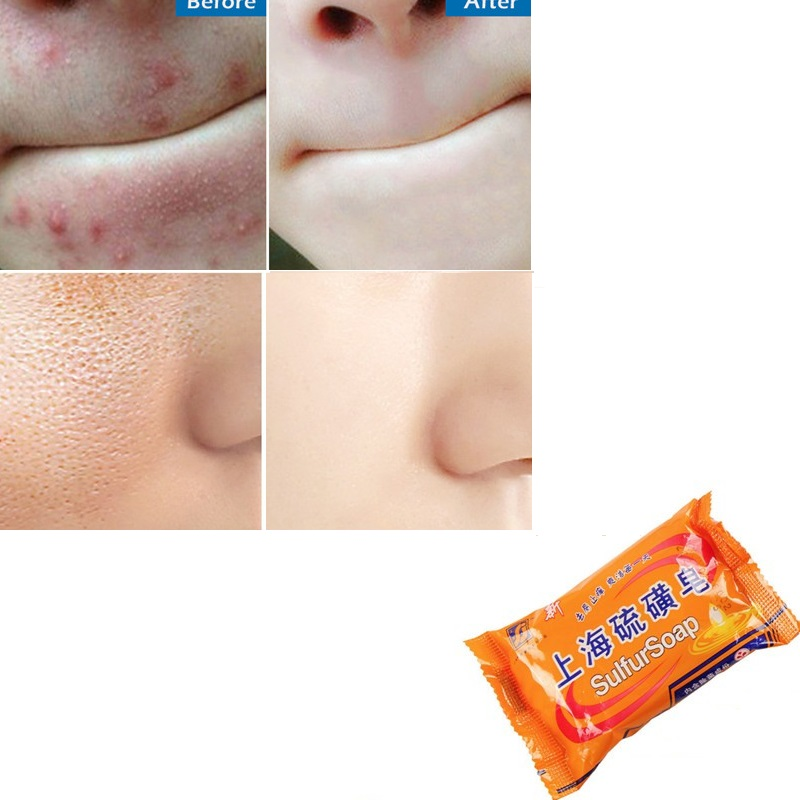 Shanghai Sulfur Soap Acne Treatment Blackhead Pores Remover Soap Whitening Oil Control Face Body Soap Skin Care TSLM2
