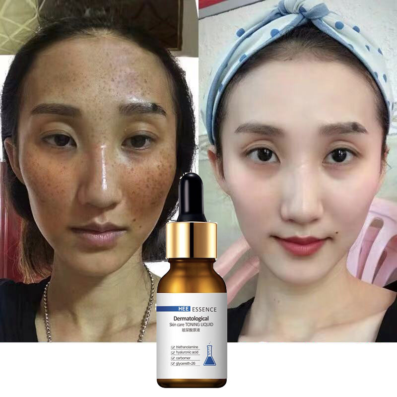 30ML Whitening FACE Serum Facial Skin Serum Vitamin C Skin Care Female Beauty Products Serum Korea