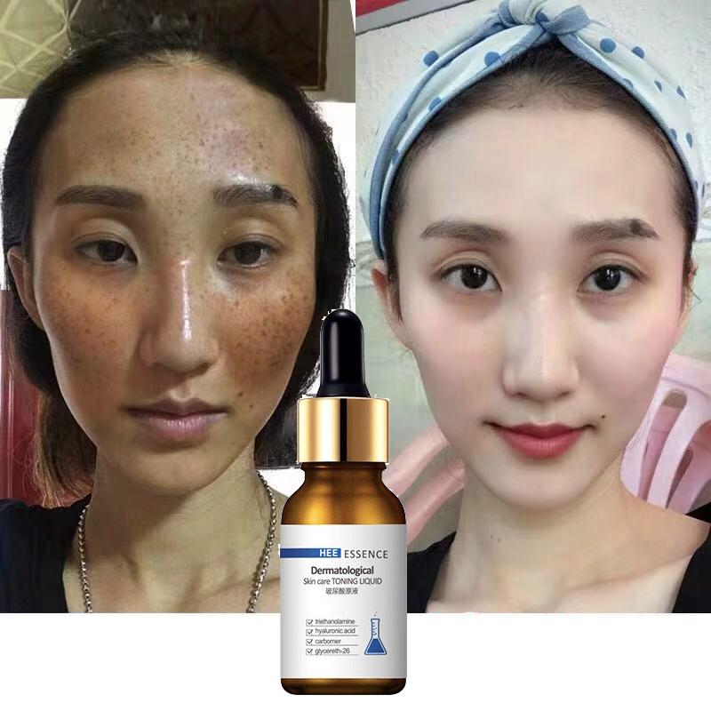 30ML whitening FACE serum facial skin vitamin c care female beauty products korea