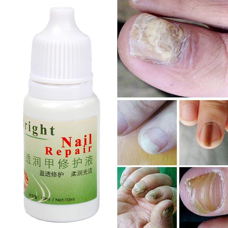 10ml Herbal Nail Antibacterial Solution Onychomycosis Treatment Sterilisation Nail Fungus Remover