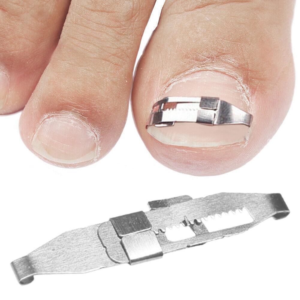 2 шт. вросших ногтей ног коррекции инструмент для ног