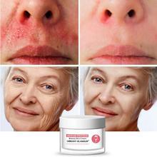 Яркий гламурный сывороточный белок восстанавливающий крем для лица анти-уменьшение морщин красной крови Анти-аллергия глубокое увлажнение увлажняющий уход за кожей