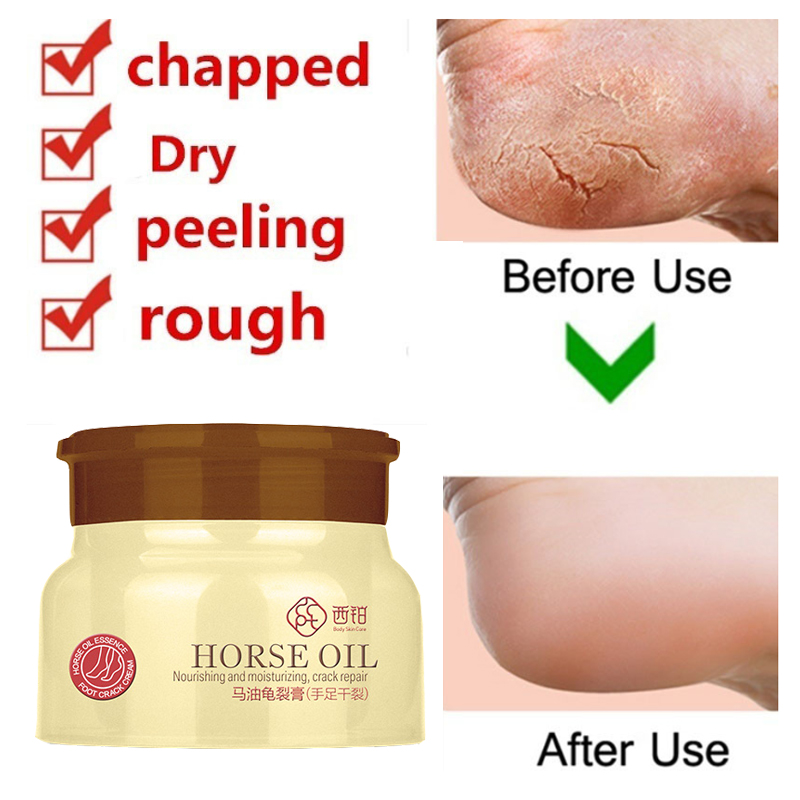 80g Horse Oil Foot Cream Heel Cream For Feet Mask Itch Blisters Anti Chapping Peeling for Foot Cream Care 2