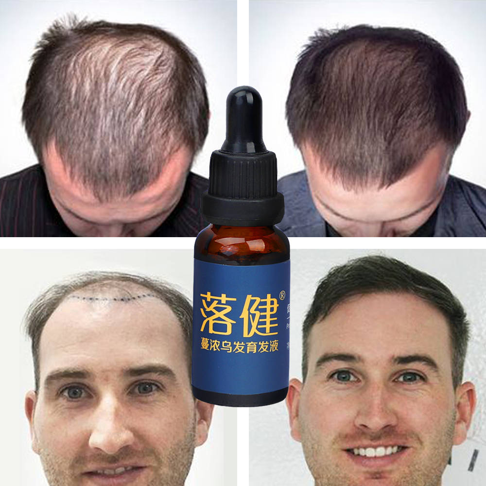Hair Growth Essence Oil Anti Hair Loss Treatment for Beard Growth Oil Repair Damage Hair Roots Hair Care Products Hair Tonic 4