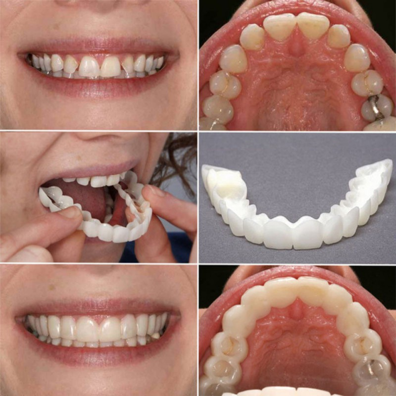 Whitening Tooth Paste Silicone Simulation Braces Perfect Instant Smile Comfort Fit Flex Curved Teeth Dentures Beauty Tools