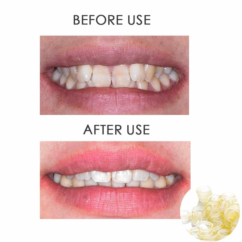 100 Pcs ทันตกรรมยางจัดฟัน Elastics วงเล็บฟัน Gap เกรดทางการแพทย์เรซิ่น Elastics ทันตกรรม Ligation คอยล์บน Adul