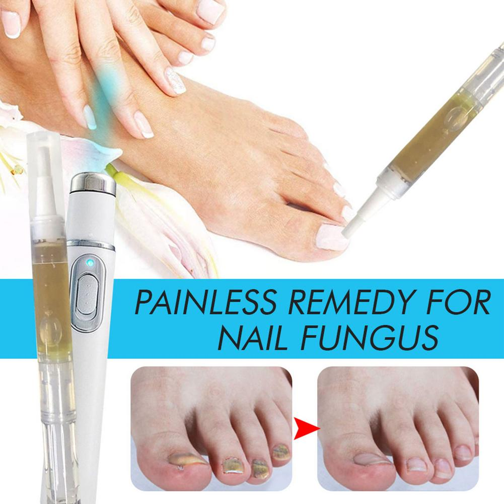 Fungal Treatment Laser Pen and Gel