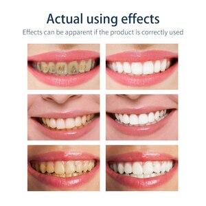 Image 5 - BAIMISS − dentifrice en Mousse, blanchiment des dents, nettoyant, fraîcheur et brillance, hygiène buccale, élimine les taches de plaques, élimine la mauvaise haleine