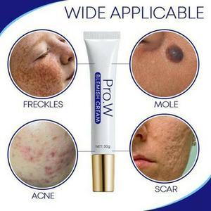 HOT!Acne Cream Blemish Cream Acne Scars Dark Acne Spot Removal Cream Ointment Moisturize Skin Care Repair Whitening Cream TSLM1