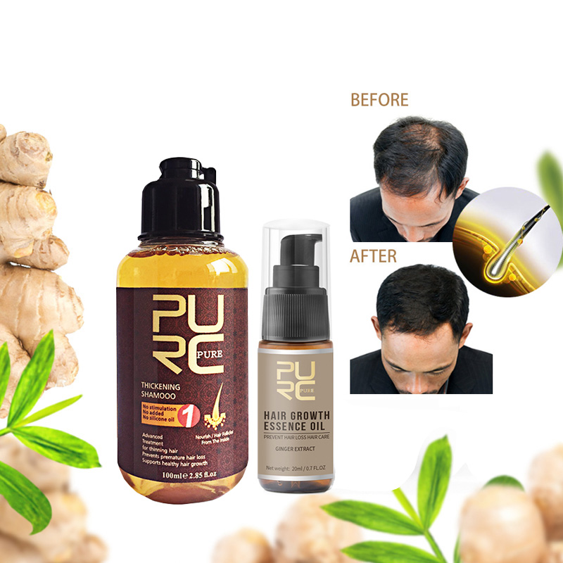 100ml+20ml Set Hair Loss Treatment Ginger Shampoo Hair Growth Essence Set Thickening Nourishing Hair Care Product image