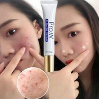 Extract Acne Scar Removal Cream Wounds Scars Stretch Marks Treatment 5
