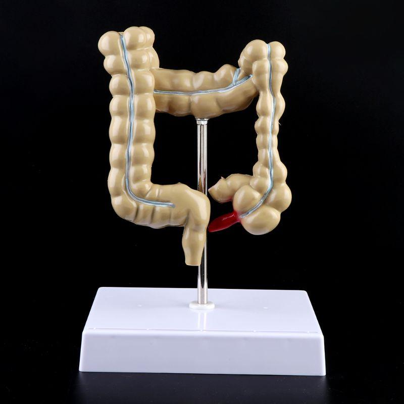 Human Colorectal Lesion Model Pathological Anatomy Colon Diseases Intestine Medical Teaching Learning Tool D08B